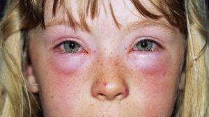 _77326717_m3200326-allergy-spl
