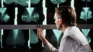 _84156274_m4150291-doctor_examines_breast_mammograms_on_a_lightbox-spl